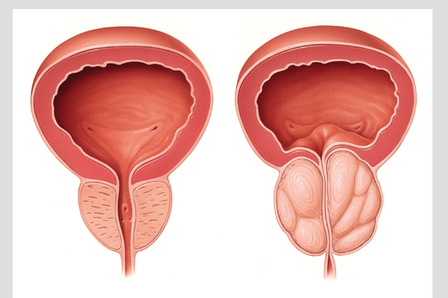 Paleo Diet - Prevent Prostate Cancer